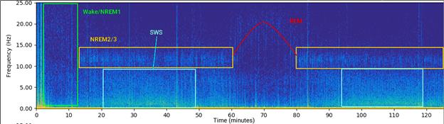 Olimex OpenEEG - Polyphasic Sleep